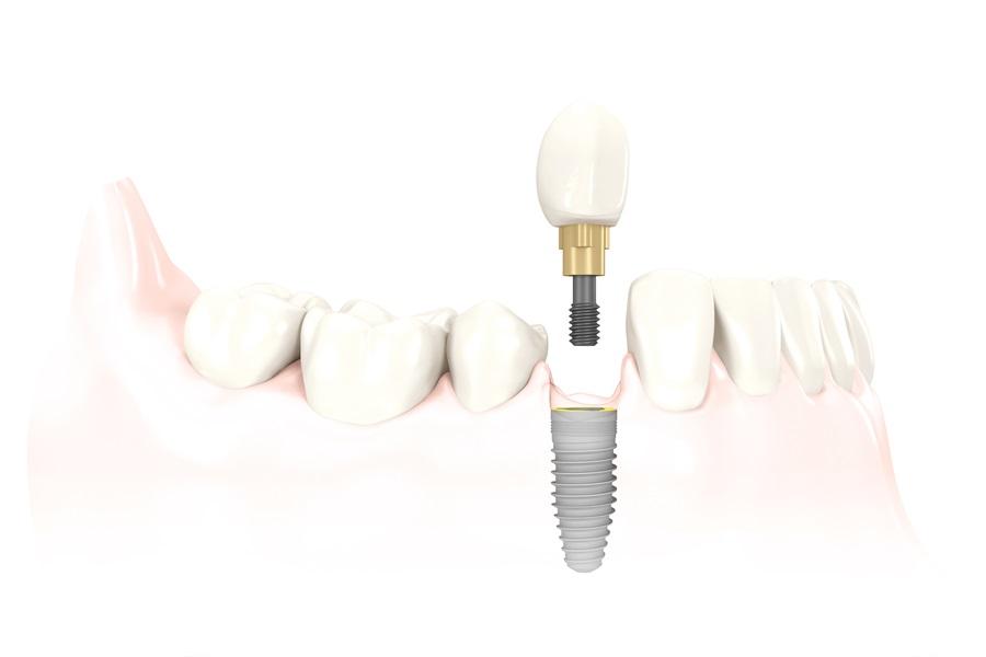 Odbudowa braku jednego zęba