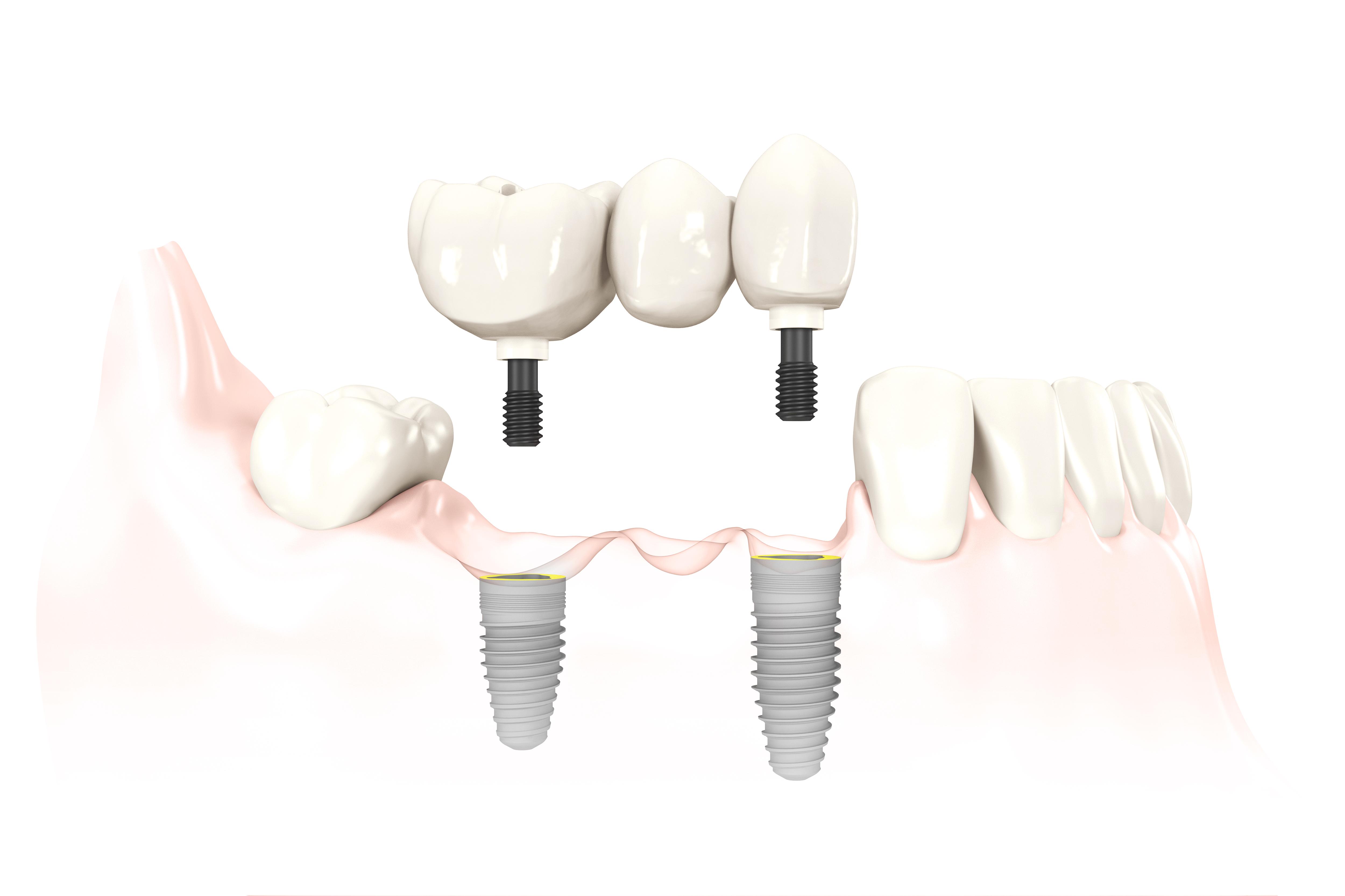 Odbudowa braku trzech zębów na implantach