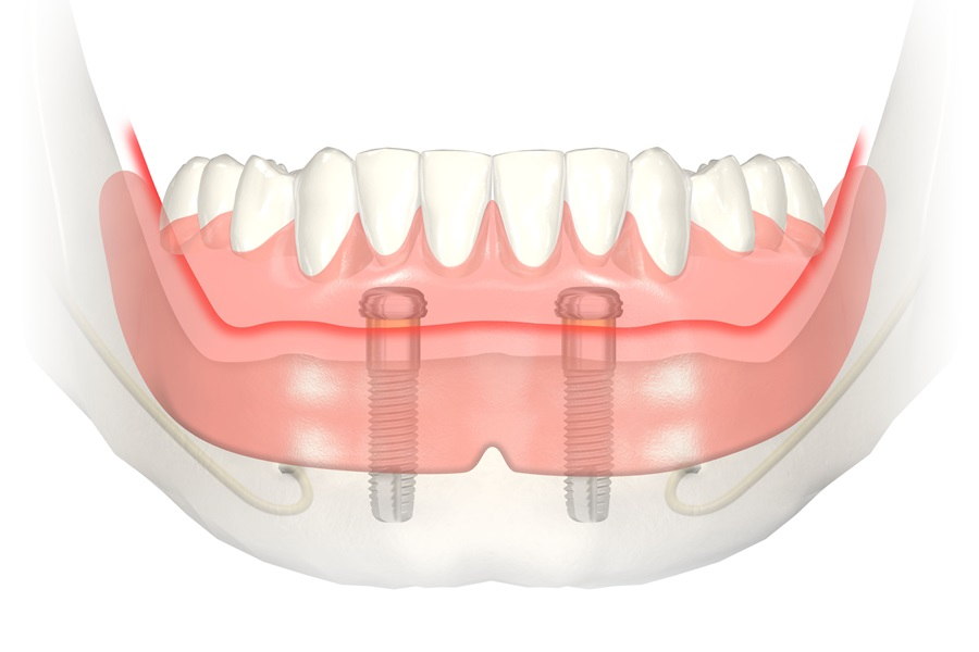 Proteza całkowita dolna mocowana na dwóch implantach