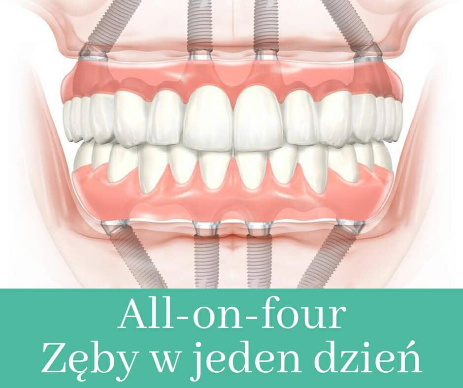 Zęby w jeden dzień - system All-on-four